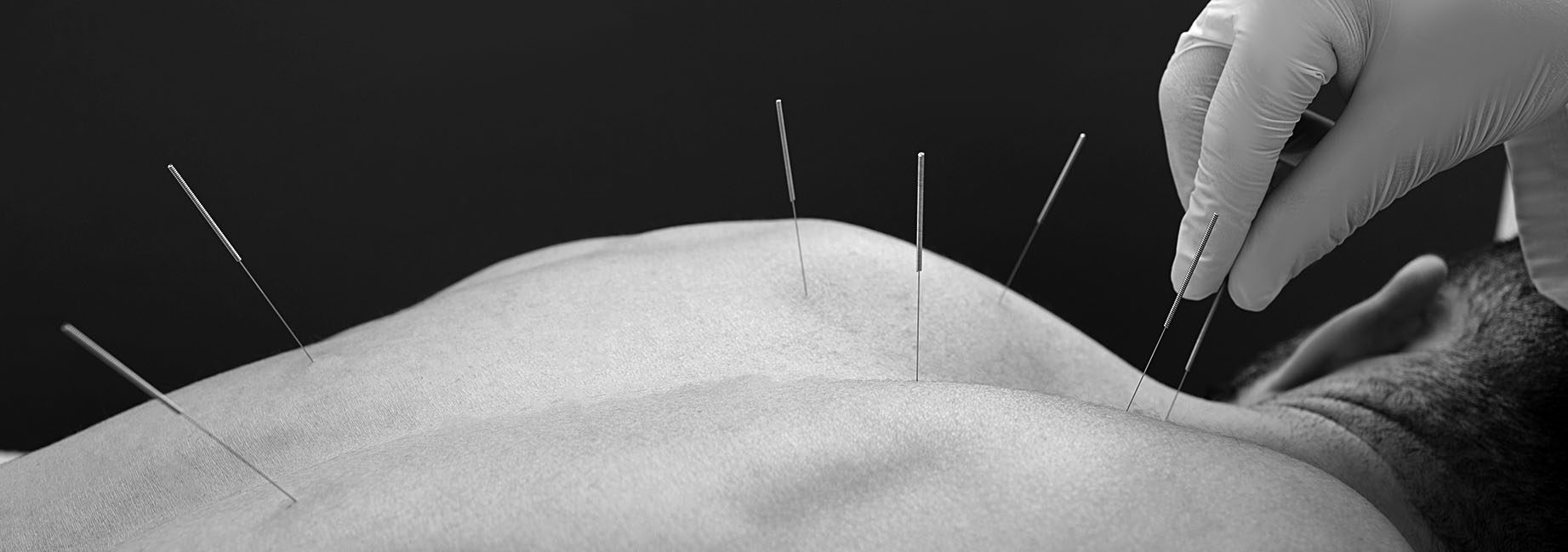 Close-up needle in the back of man during acupuncture procedure on a brown background. Acupuncture.
